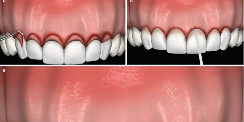 insan ağız içi kron diş boyu uzatma görseli