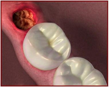 diş çekimi sonrası oluşan alveolit